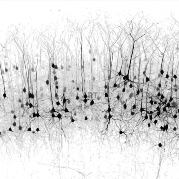 The Complexity of the Brain